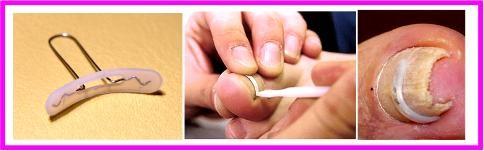 Как убрать вросшие ногти дома